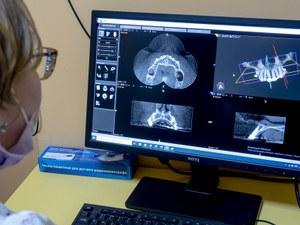 3D радиодиагностика челюстно - лицевой области
